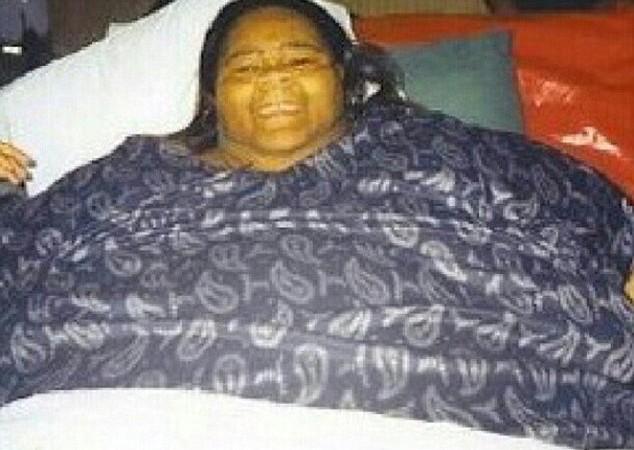 Insolite : La plus grosse femme du monde a perdu la moitié de son poids