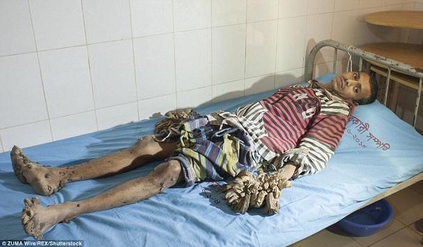 Indonésie  Mort d'un homme à la maladie bizarre qui l'avait transformé…Mi-homme-mi-arbre