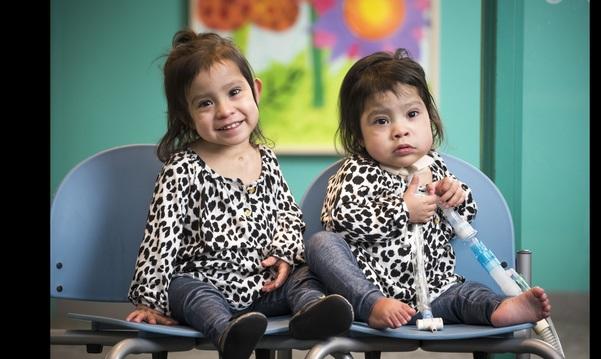 Des soeurs siamoises, un an près leur opération réussie