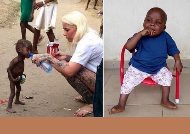 Une Danoise sauve un enfant nigérian catalogué »sorcier» à cause d'une malformation