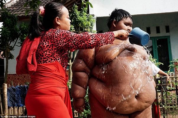 Indonésie Arya Permana, 10 ans, le plus gros garçon au monde pèse 192 kilos