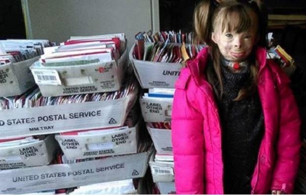 Etonnante solidarité mondiale autour d'une jeune survivante d'un incendie