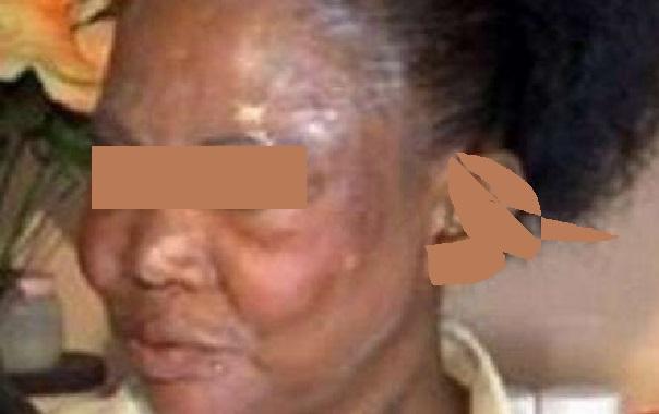 Publicité de la dépigmentation de la peau : GFM abdique face à la mise en demeure du CNRA