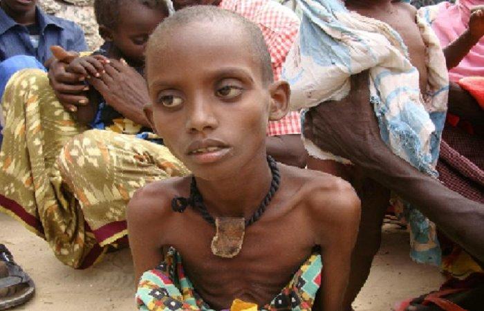 Alimentation : L'Afrique n'est pas sur la bonne voie pour l'objectif «zéro faim» d'ici 2030