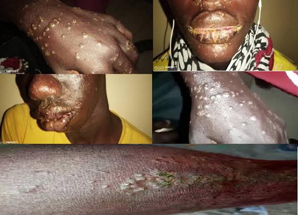 Boutons sur les mains, visage lacéré…Une maladie mystérieuse s'attaque aux pêcheurs de Thiaroye sur mer qui soupçonnent un produit déversé en mer